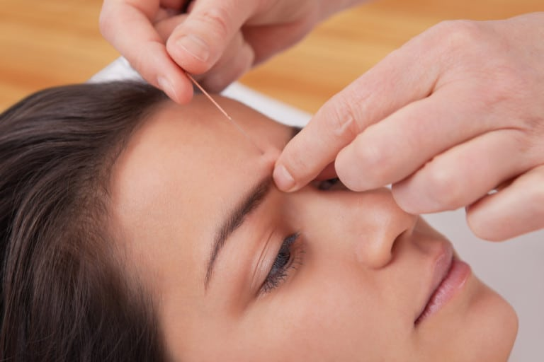 Acupuncture for Scar Tissue